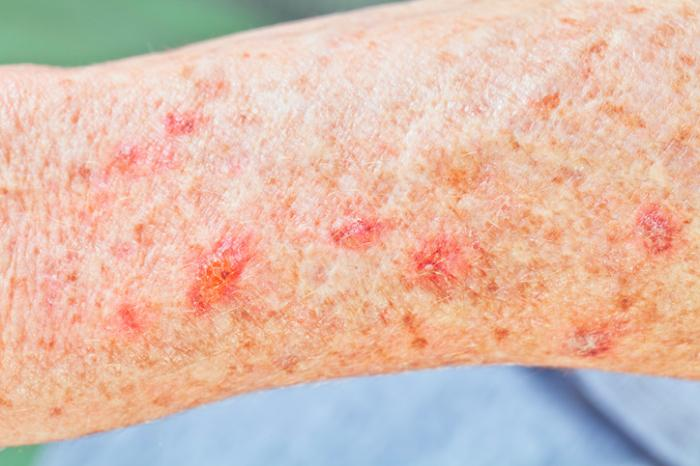Bumps on the skin: Pictures, causes, and treatments