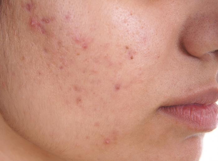 Sensitive Skin Syndrome (Dermatology: Clinical & Basic Science)