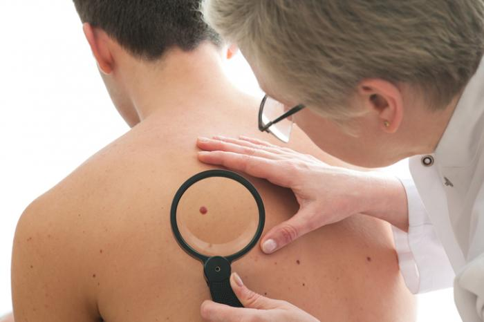 Skin diseases: List of common conditions and symptoms
