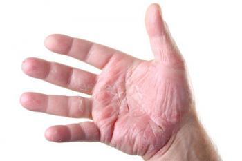 Psoriatic Arthritis Pictures Of Symptoms And Progression