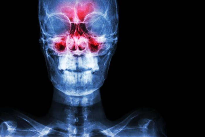Sinus surgery: Types, recovery, risks, and alternatives