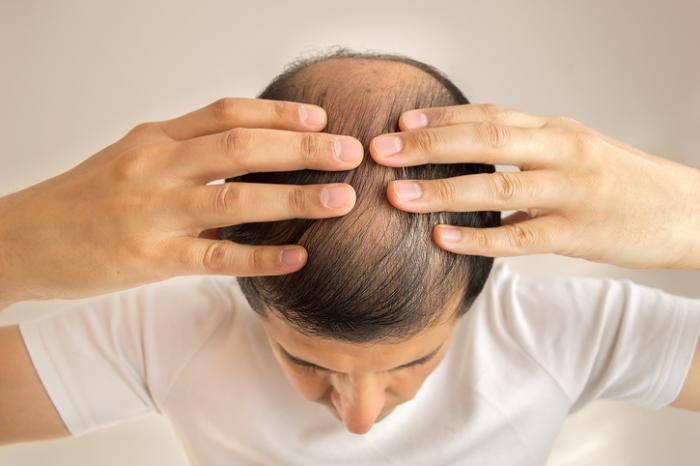 Hair loss treatments for men: Best options