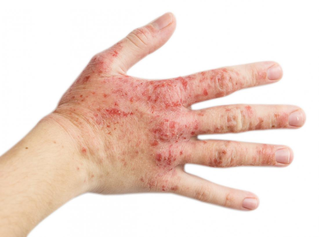 Stress rash: Effects, treatment, and alternative causes