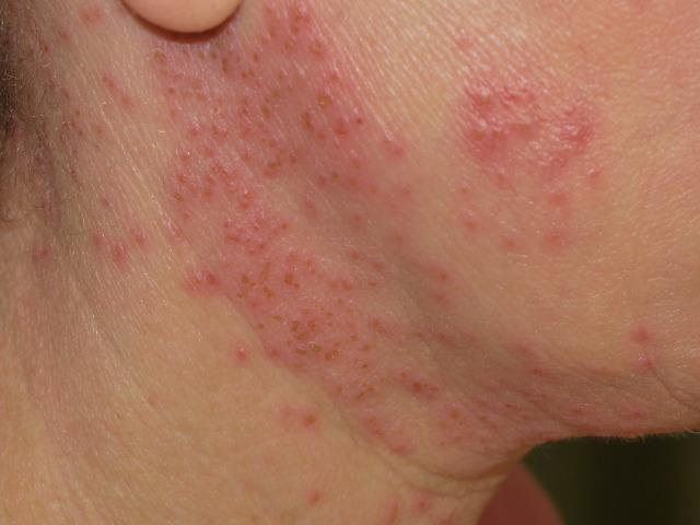 Eczema herpeticum: Symptoms, diagnosis, and treatment