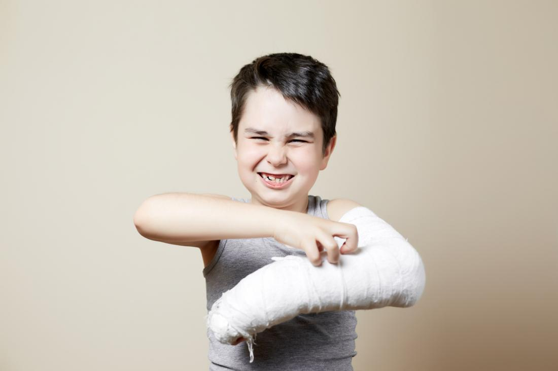 Buckle fractures: Risk factors and recovery