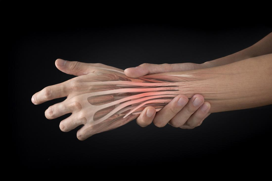 Extensor tendonitis: Causes, recovery, and prevention