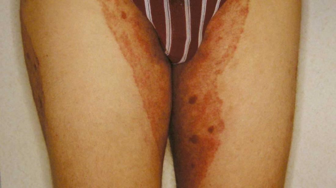 Fungal infections: Symptoms, types, and treatment