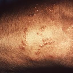 Skin rash: 68 pictures, causes, and treatments