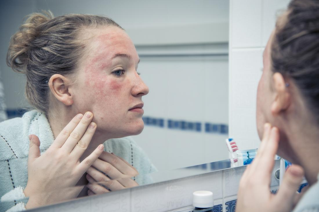 Sun poisoning: Symptoms, treatment, and prevention