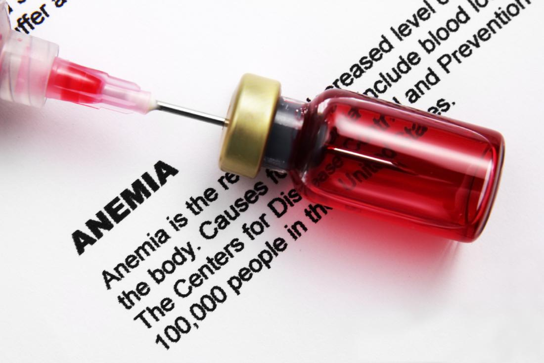 Iron deficiency anemia: Causes, symptoms, and management