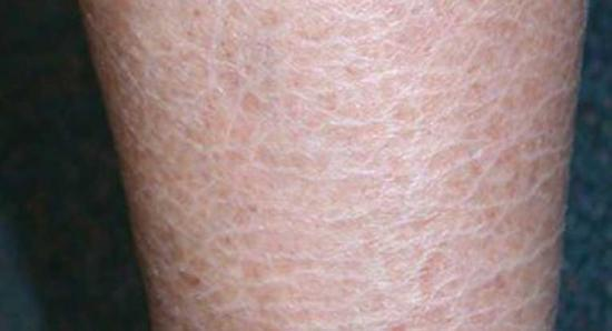 Ichthyosis vulgaris: Pictures, diagnosis, and treatment