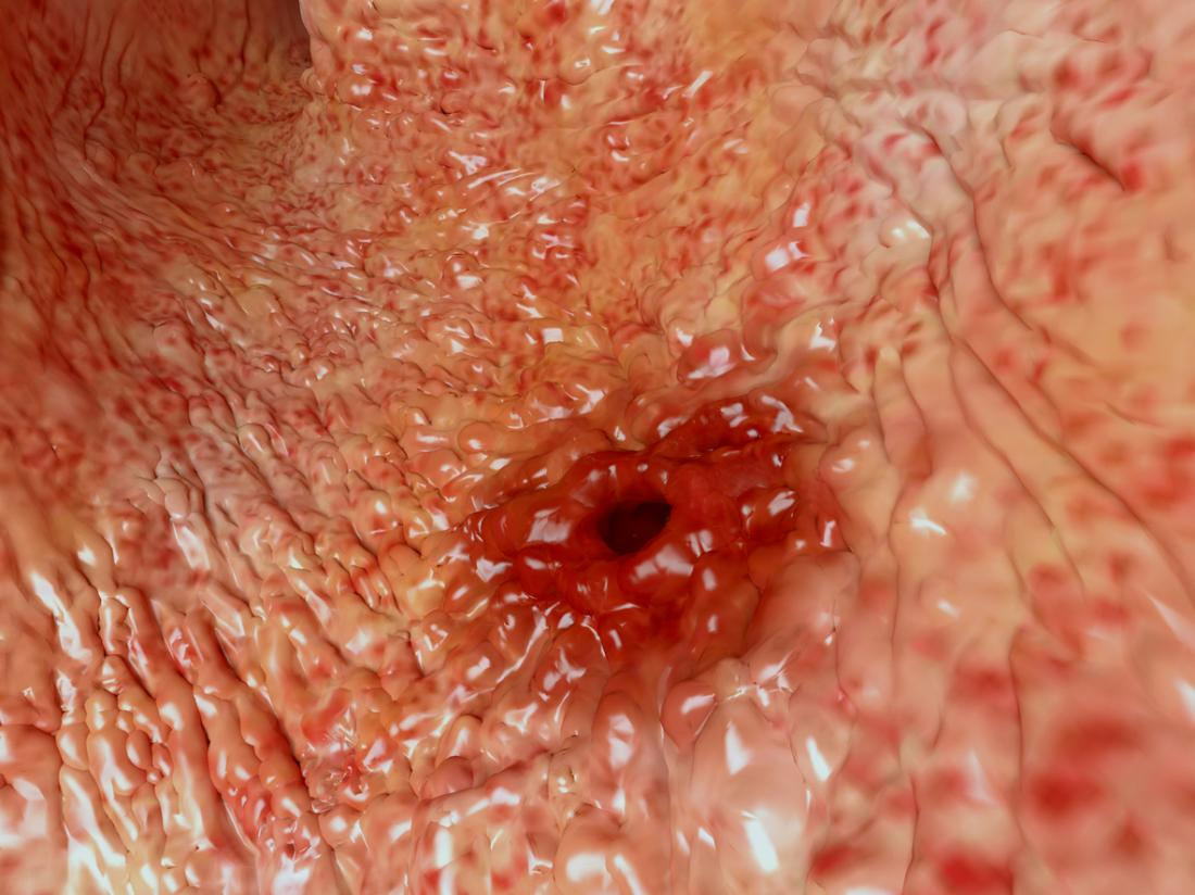 Bleeding ulcer: What causes it and is it serious?