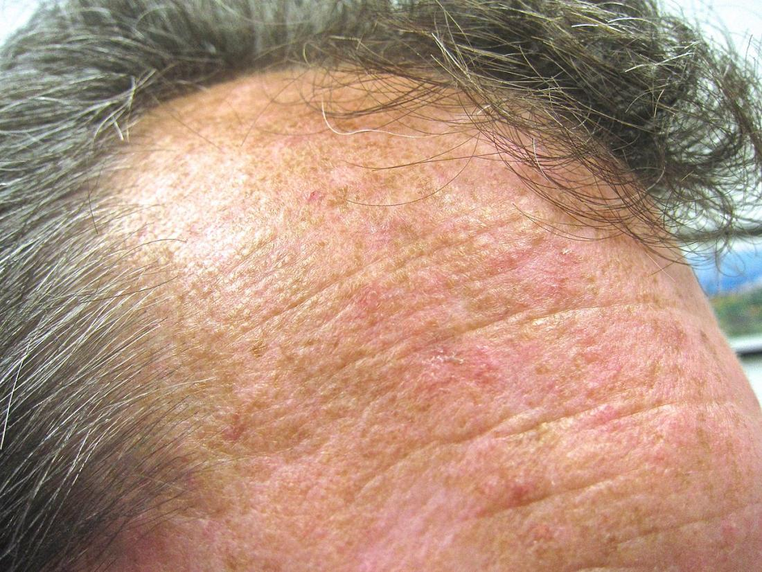 Actinic keratosis: Pictures, causes, and prevention