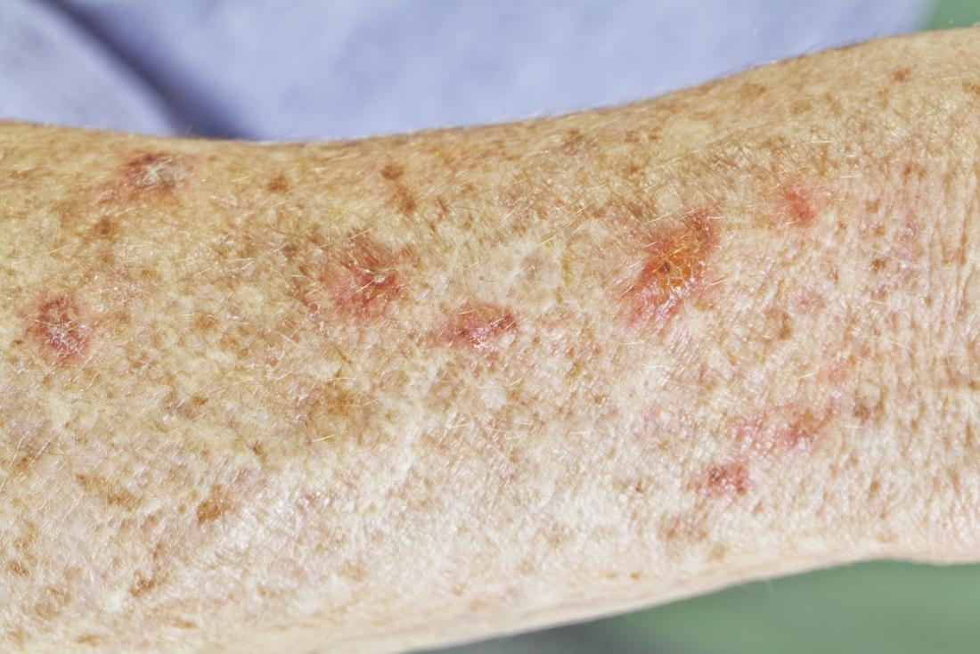 Actinic Keratosis Pictures Causes And Prevention