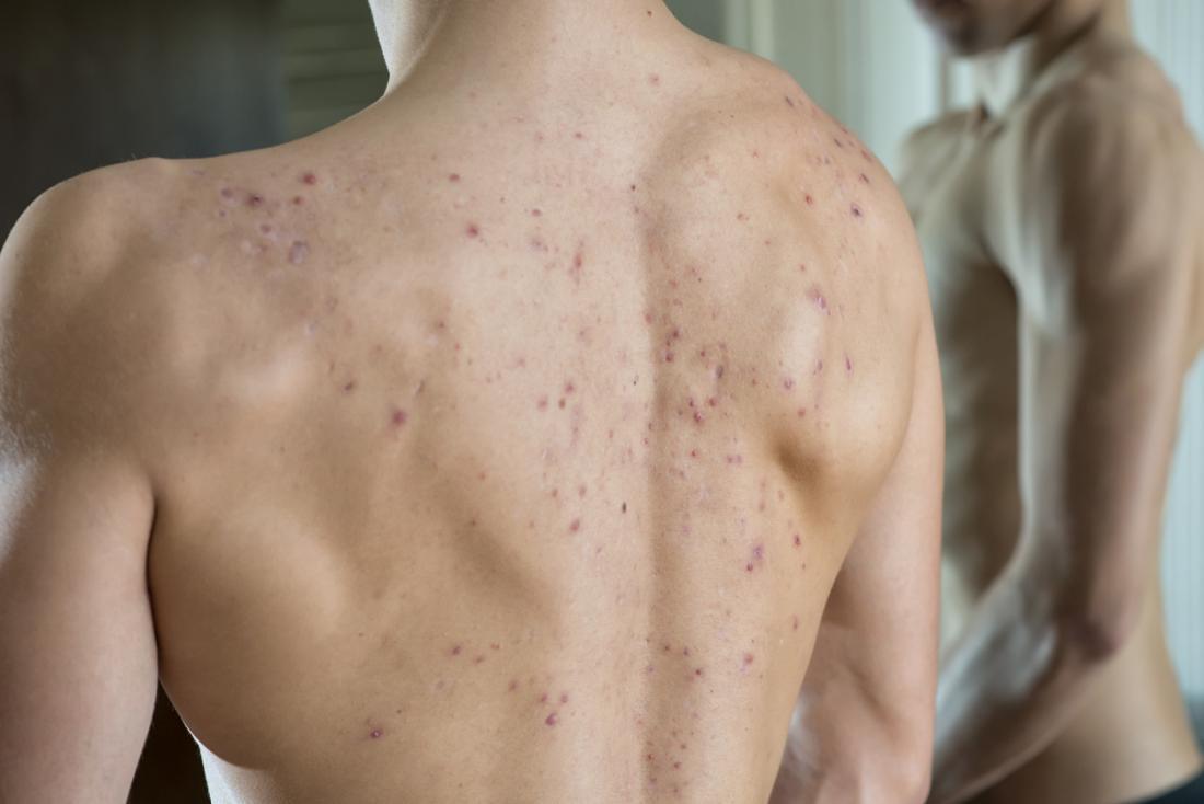 Back acne.