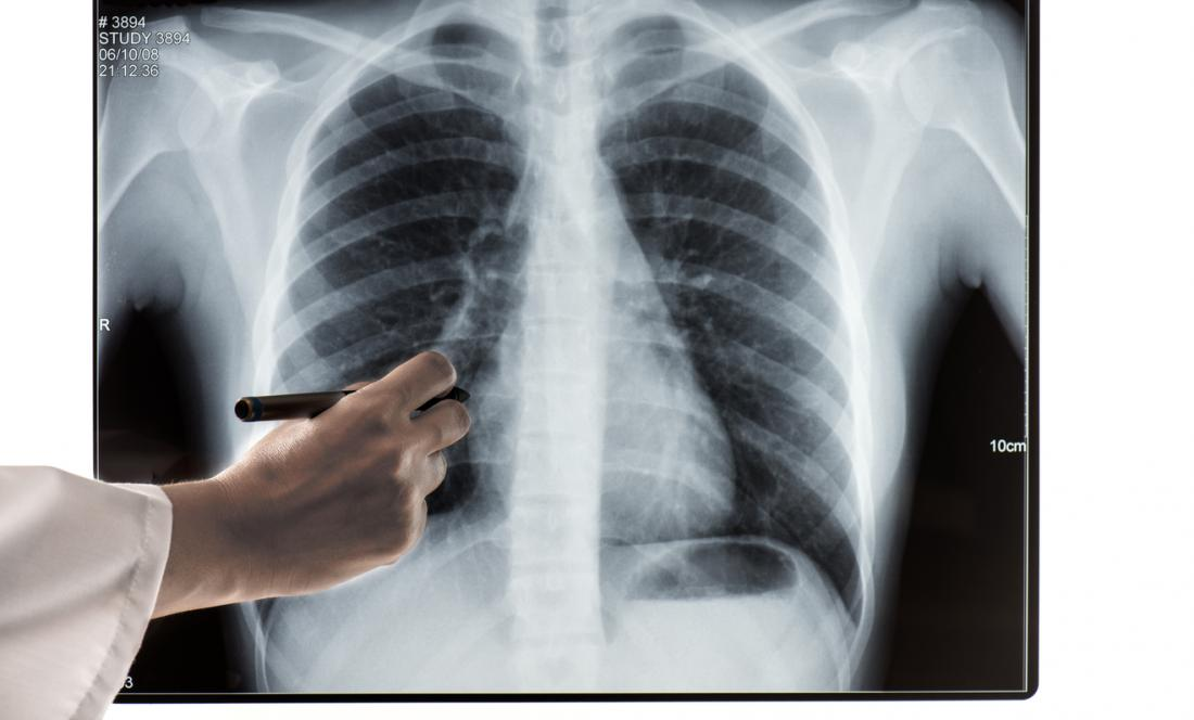 Costochondritis: Causes, symptoms, and treatment
