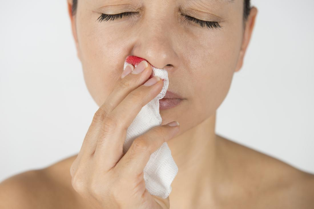 Empty nose syndrome: Causes, symptoms, and treatment