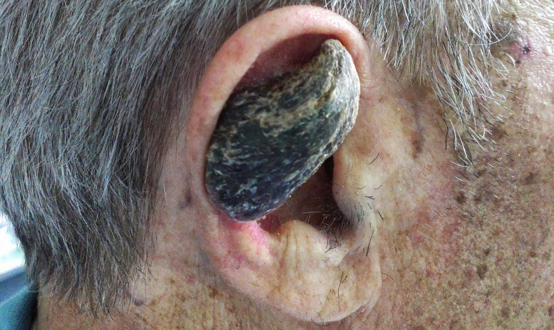 Cutaneous horn: Picture, causes, and symptoms