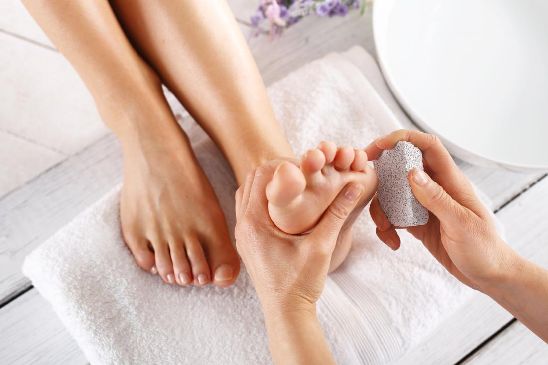 Smelly feet: Footwear tips, home remedies, and medical treatment