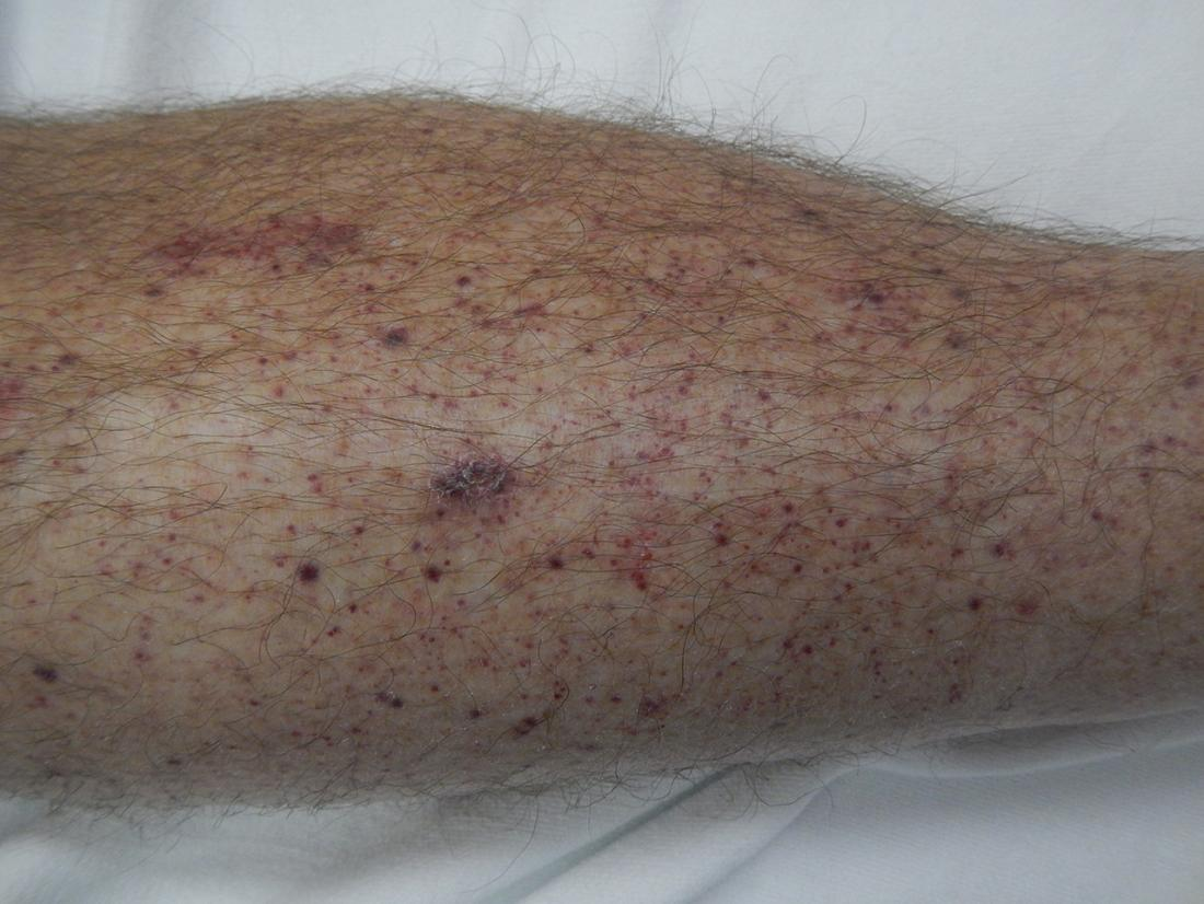 Skin Cancer And Rashes Cancerous And Precancerous Lesions
