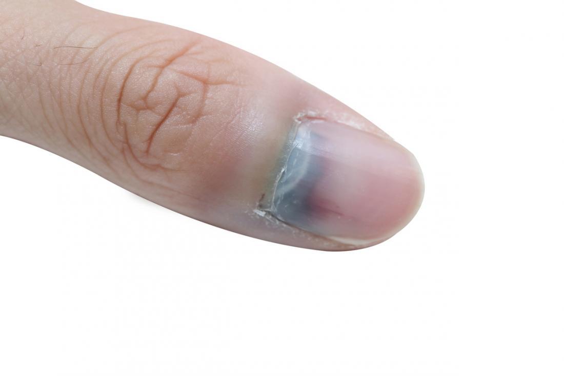 Splitter Unterm Fingernagel