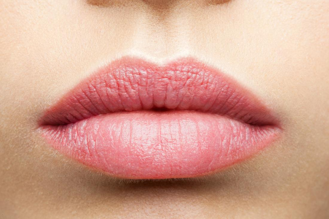 Actinic cheilitis: Causes, treatment, and prevention