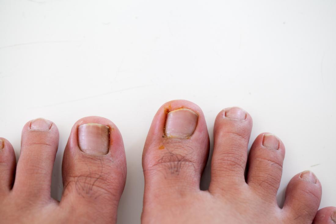 Ten common foot problems: Causes and treatment
