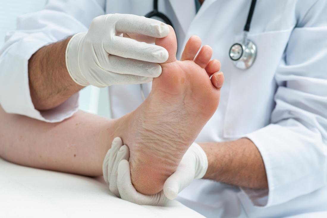 Podiatrist looking at athletes foot.