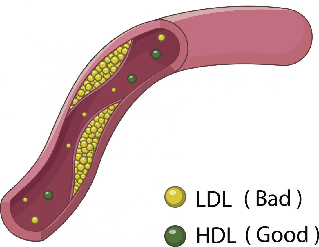 High HDL levels: Recommendations, balance, and tips
