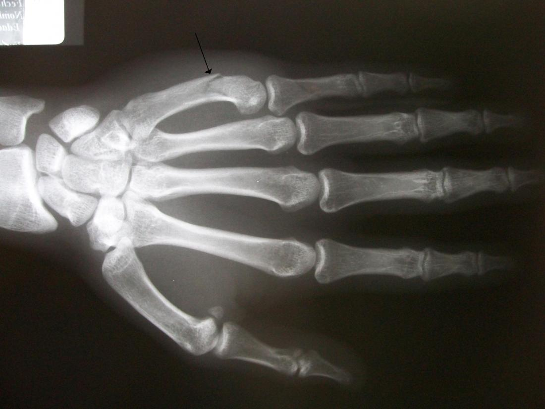 lateral hand x ray