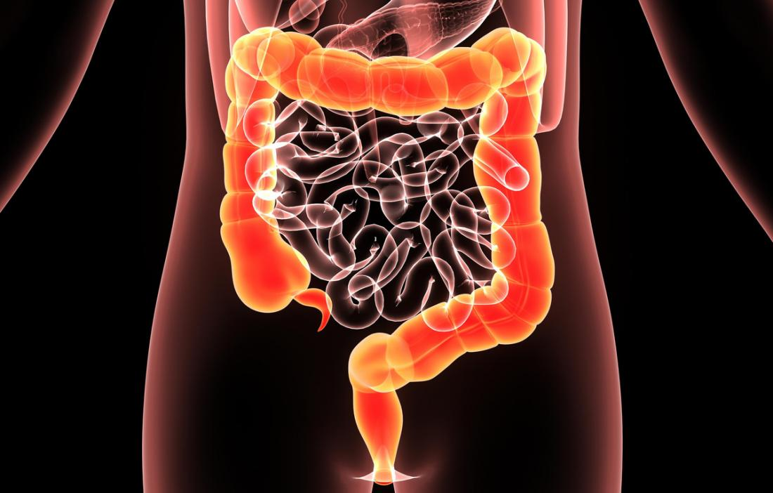 Hemicolectomy Procedure Outlook Risks And Diet