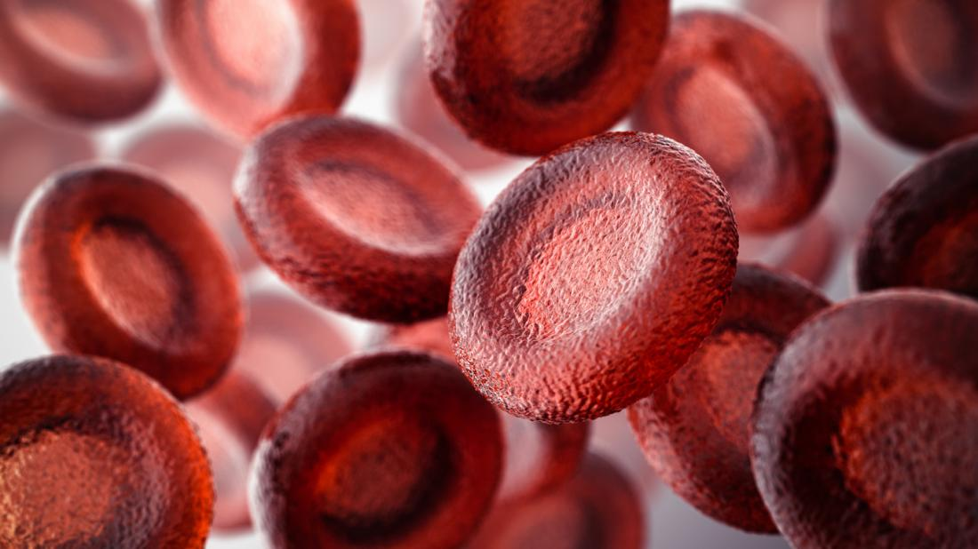 Myelodysplastic syndrome (MDS): Symptoms, causes, and treatments