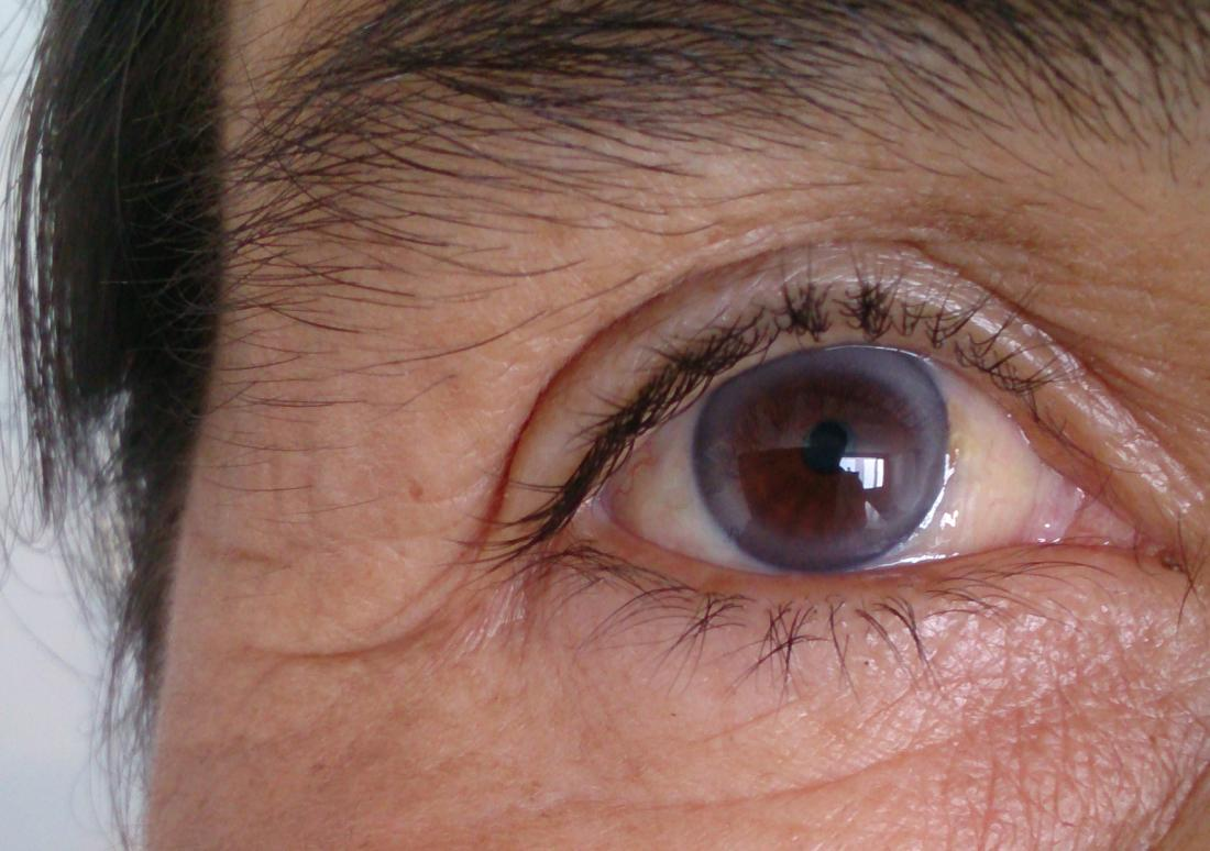 Arcus senilis: Causes, symptoms, and treatment