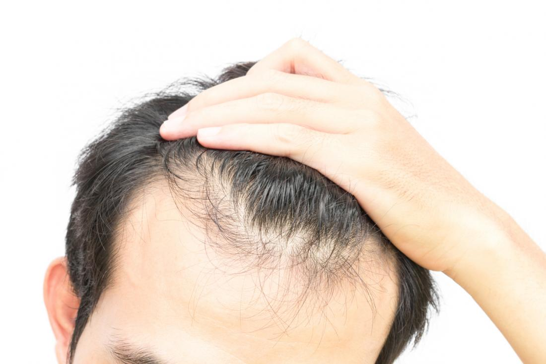 Onion juice for hair growth: Does it work and how?