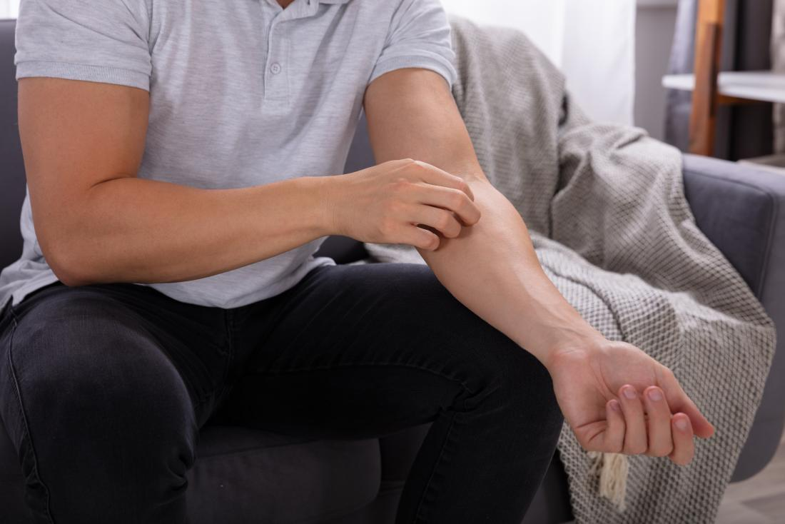 Psoriasis and itching: Why does it happen and how can I stop it?