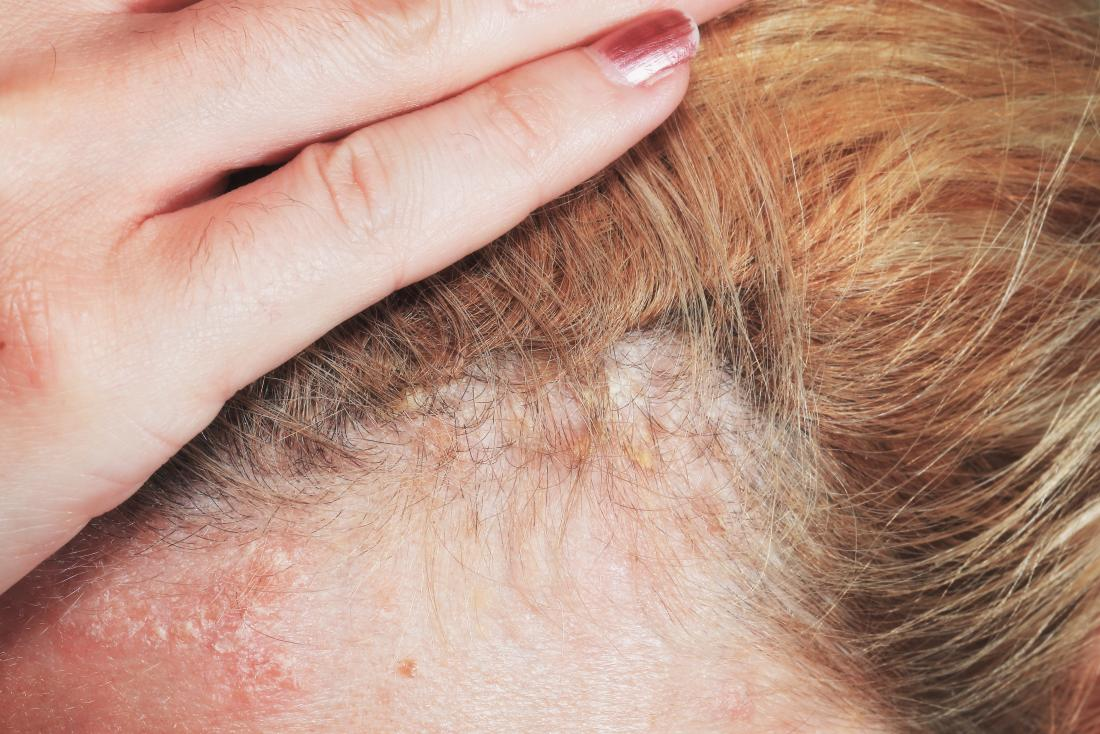 Image result for psoriasis on scalp