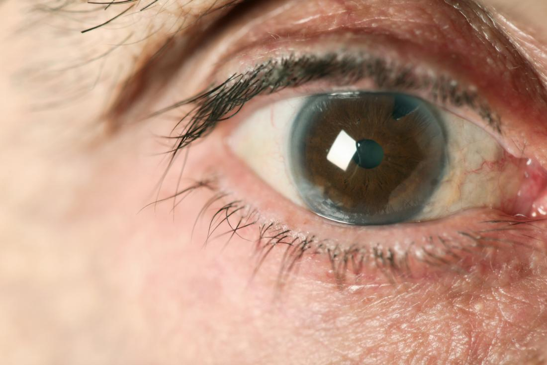 Natural protein may help to prevent blindness