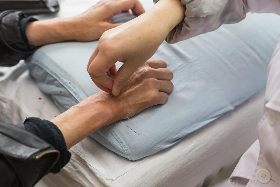 Acupuncture for diabetes: Benefits, techniques, and risks
