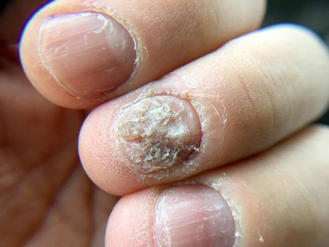 Nail psoriasis or fungus?: Differences, symptoms, and outlook