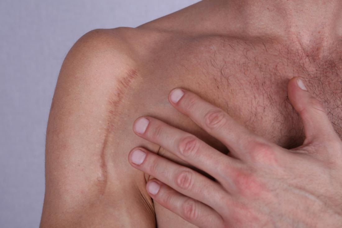 Getting rid of old scars: Types of scar, home remedies, and prevention