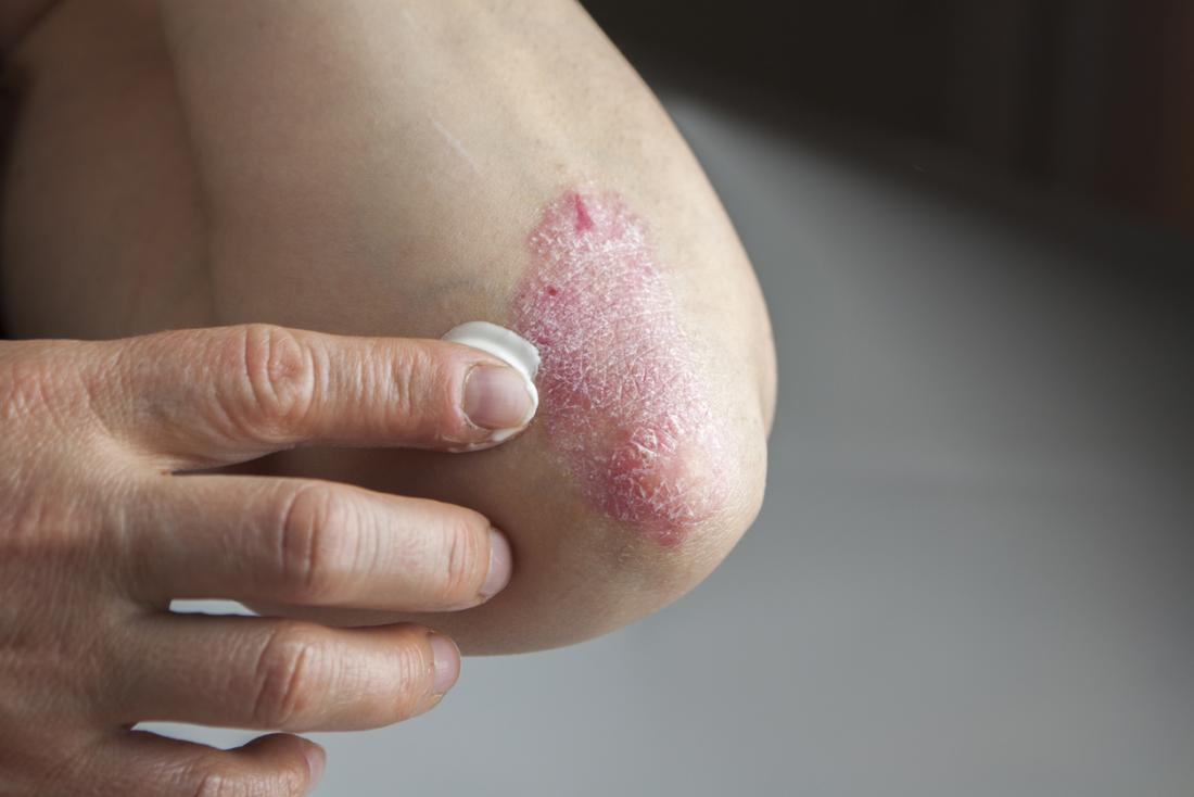 Do steroid creams work for psoriasis steroids after 1 month