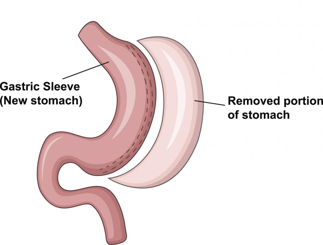 Image result for vertical sleeve gastrectomy diagram