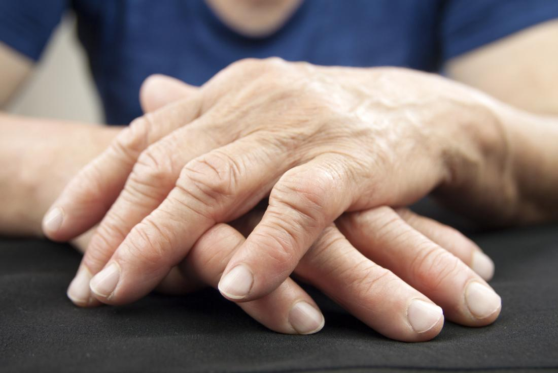 Rheumatoid arthritis could be treated with a novel hydrogel