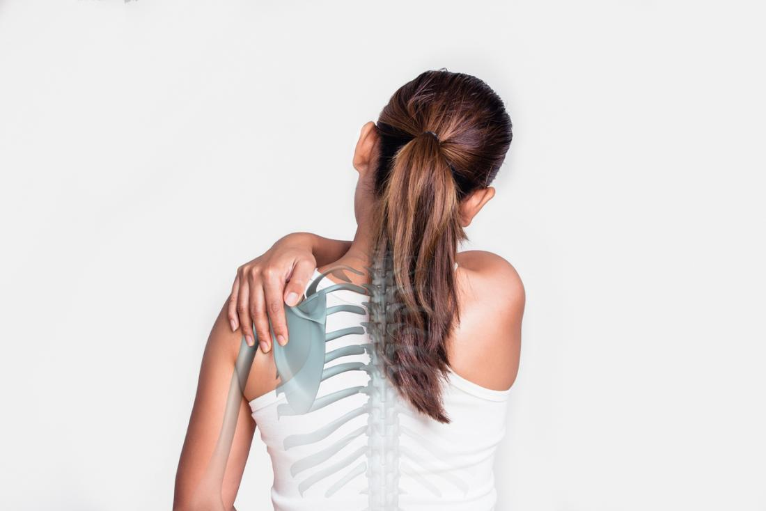 woman with shoulder pain - skeleton showing