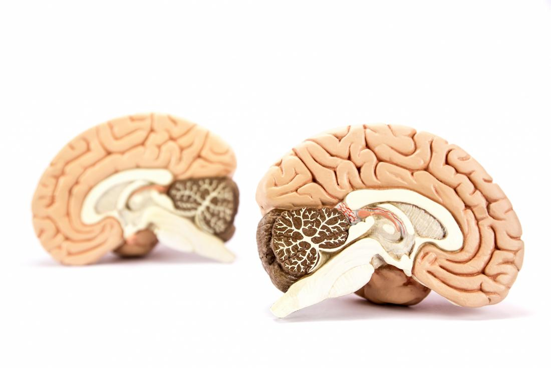 Schizophrenia affects whole-brain connectivity, major study finds