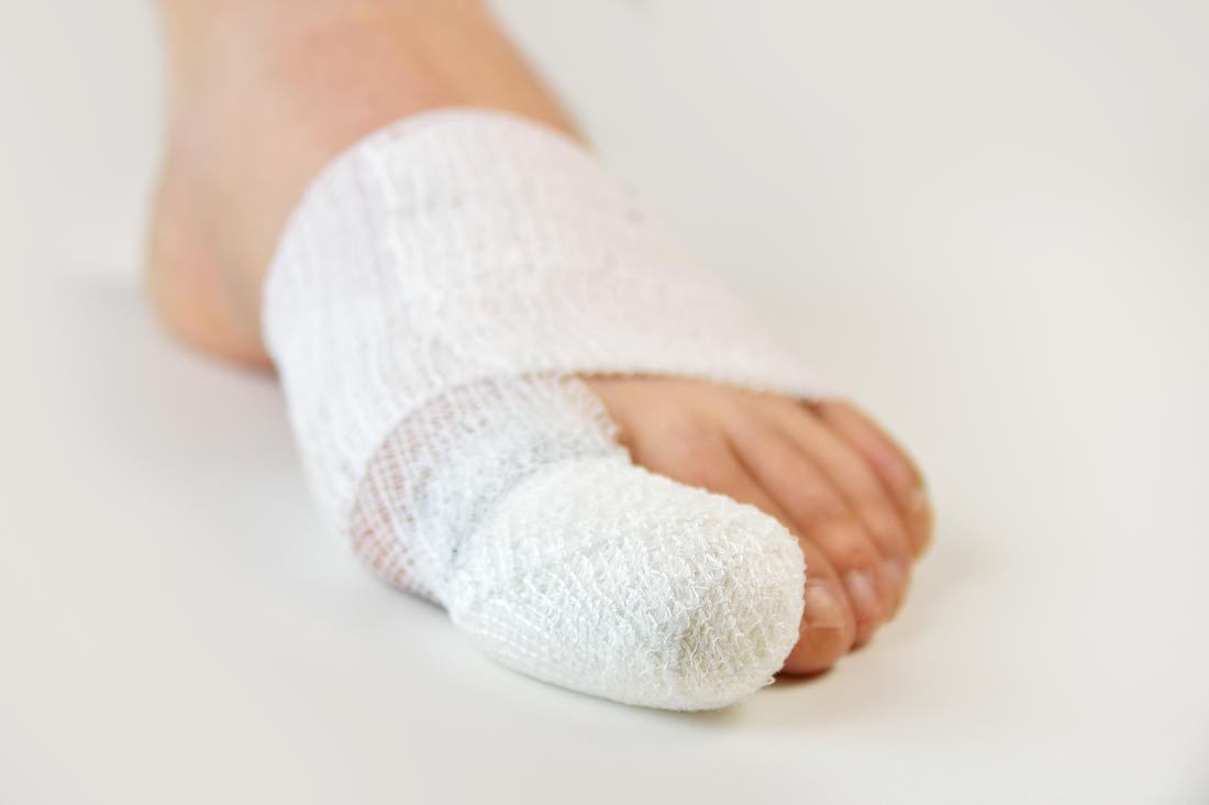 Diabetic blisters: Symptoms, treatment, and prevention