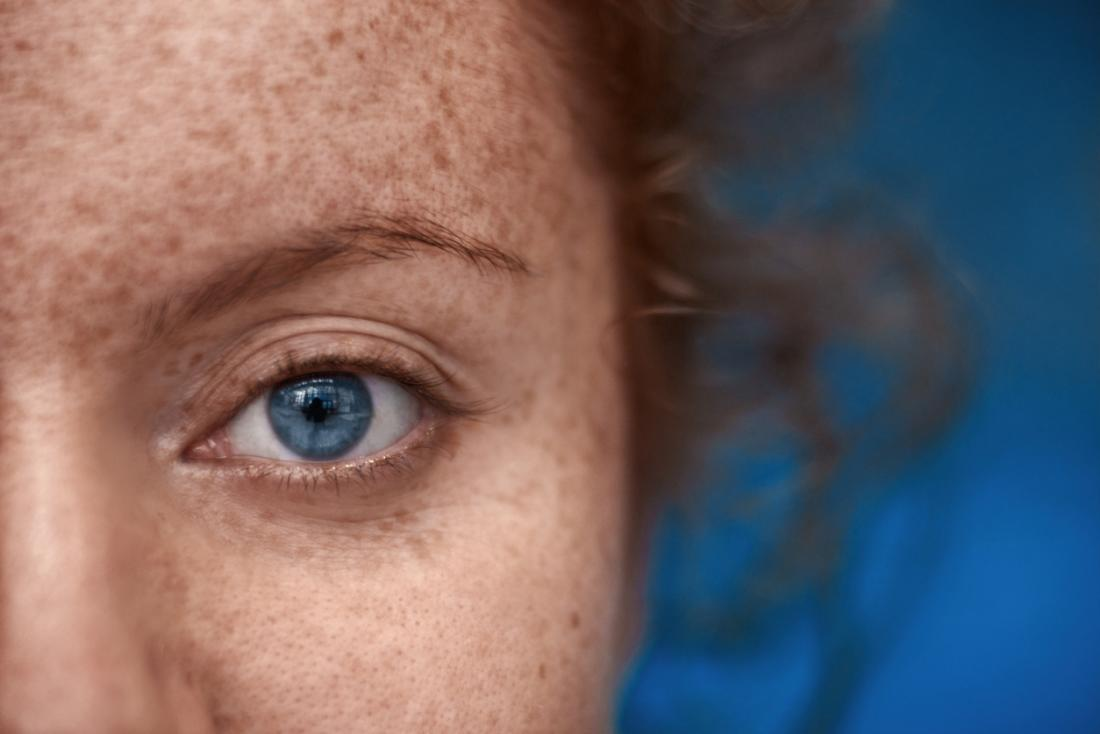 Girl with freckles and blue eyes