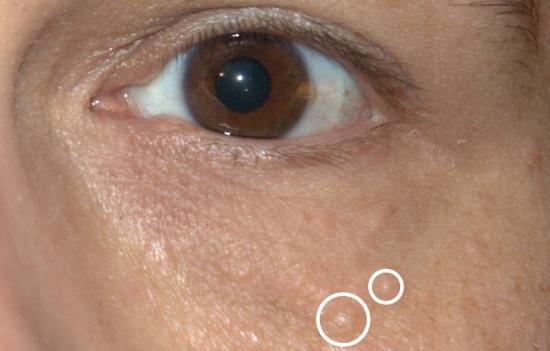 Syringoma: Pictures, treatment, and removal