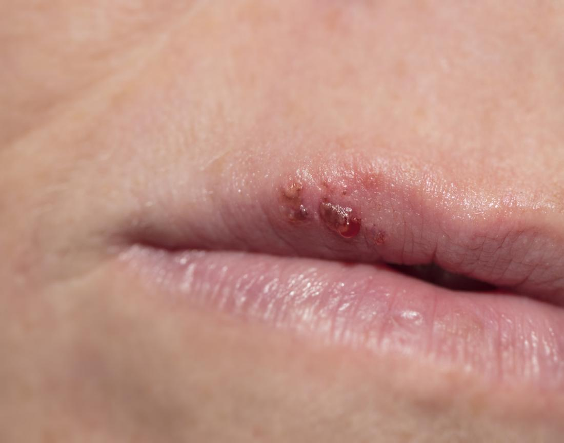 Cold sore on a top lip