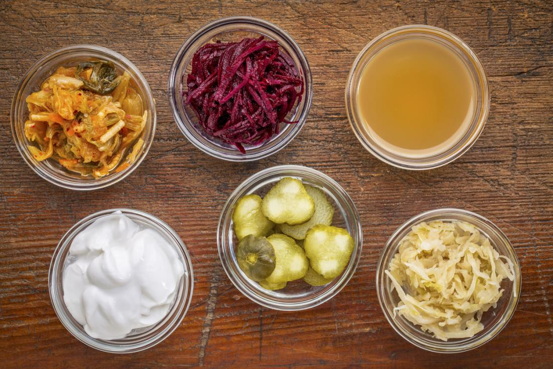 a range of fermented foods that contain probiotics, including pickles, kimchi, kombucha, and yoghurt.